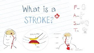 What is a Stroke? Animated Explanation Video