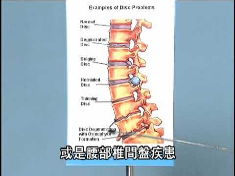 健生中醫 - 關心您的坐骨神經痛 - 0800092000