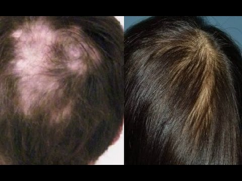 how to stop hair fall grow hair faster at home prevent