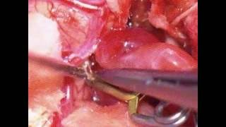 AVM excision Surgery Dissecting of AVM Nidus -1