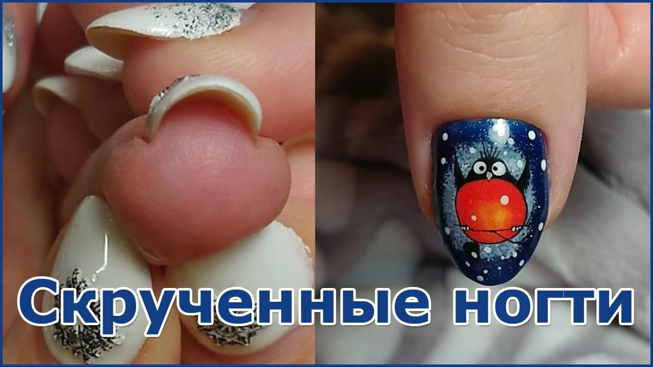 Скрученные ногти/ Как исправить Гелем/ Врастающие ногти