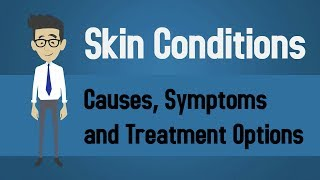 Skin Conditions - Causes, Symptoms and Treatment Options