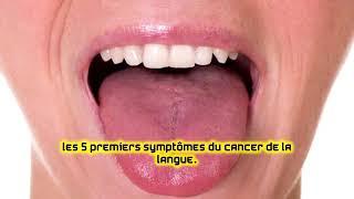 Les 5 premiers symptômes du cancer de la langue