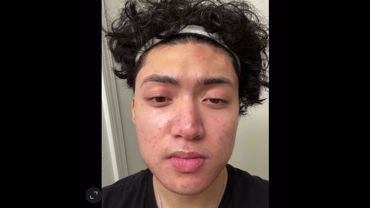 Acne Time Lapse