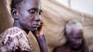 Thousands are unable to access healthcare in South Sudan