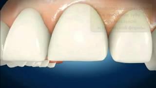 Реставрация зуба(, 2016-01-24T16:17:35.000Z)