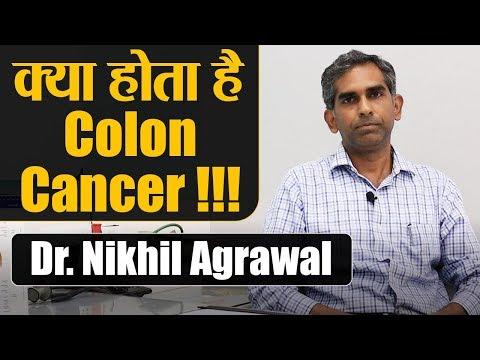 Colon Cancer Symptoms Causes Treatment By Dr Nikhil Agrawal À¤• À¤² À¤¨ À¤• À¤¸à¤° À¤ªà¤° À¤ª À¤° À¤œ À¤¨à¤• À¤° Youtube