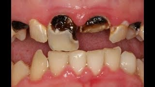 Home remedies for an Abscessed Tooth | Abscessed tooth treatment