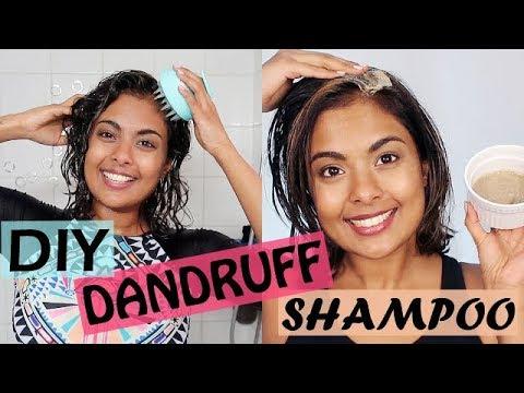 DIY Anti Dandruff Shampoo + Natural Hair Mask For Rapid Hair Growth