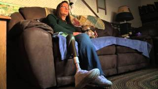Living with Phantom Limb Syndrome