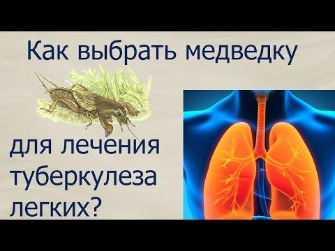 Туберкулез на Украине — это бомба замедленного действия