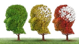 Who Am I? Understanding Alzheimer