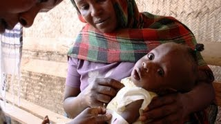 Combating child malnutrition in Darfur, Sudan