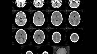 Radiology - Normal brain anatomy - CT and MRI