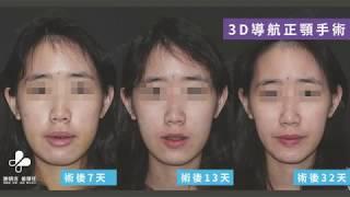 我的恢復週記-7月|3D導航正顎手術|1個月回診紀錄 thumbnail