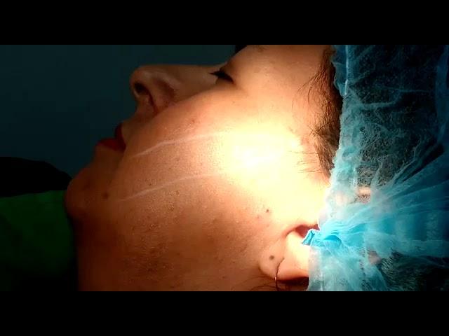 Dra. Pilar Parra / Tratamiento 4