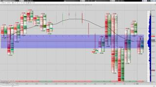 Nadex 20 minute ATM strategy 1 of 2