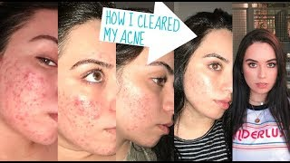 HOW I CLEARED MY CYSTIC ACNE: SKIN CARE ROUTINE