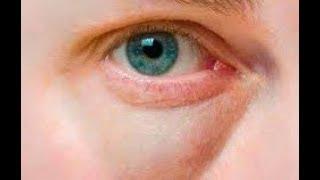 аптечный Троксерутин: от отёков, купероза и малярных мешков!