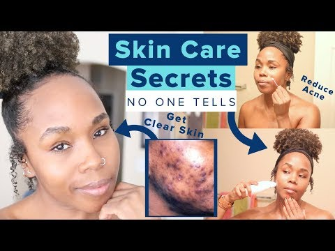 20 Skincare Secrets NO ONE TELLS YOU | NO MORE Blackheads, Acne Scars & Hyperpigmentation