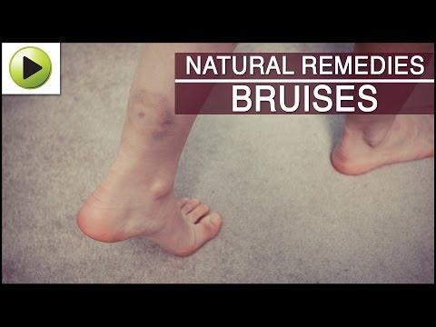 Skin Care Bruises How To Heal