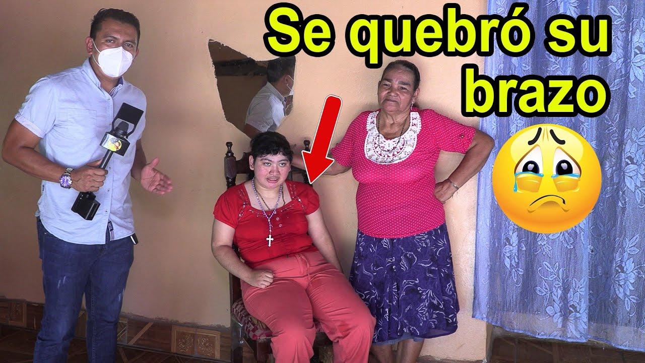 Niña con epilepcia, se quebró el brazo y así quedó para siempre - Ediciones Mendoza