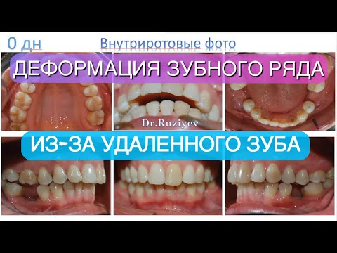 Из-за удаления зубов произошла деформация зубоальвеолярная, пролечили на безбрекетной системе