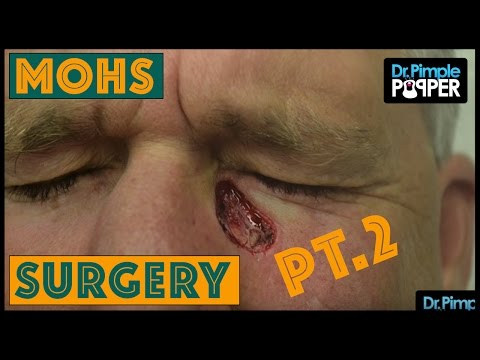 MOHs Surgery: Basal Cell Carcinoma - Pt. 2