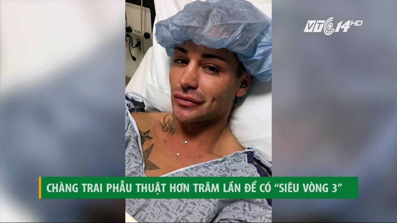 (VTC14)_Chàng trai phẫu thuật 100 lần để có được