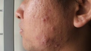 WHAT FOODS CAUSE ACNE???
