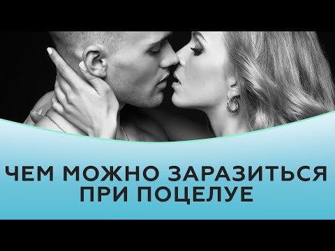 Чем можно заразиться при поцелуе