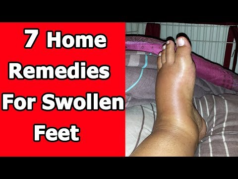 7 Home Remedies For Swollen Feet That Work