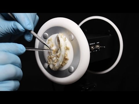 ASMR 3Dio Ear Peeling, Brushing Cleaning Latex Gloves - What Has Happened to Your Ears? (No talking)