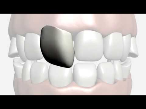 The Cost Of Teeth Veneers Differences Between Composite Ceramic Porcelain