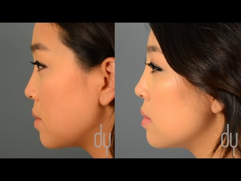 Non Surgical Rhinoplasty Nose Job Before After Reviews Beverly Hills Youtube