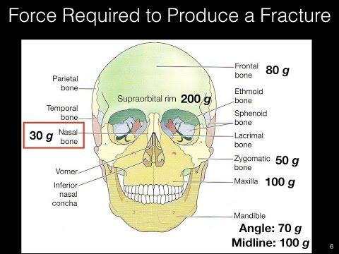 Nasal Fracture Management