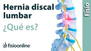 Hernia discal o de disco lumbar - Qué es y cuáles son sus causas
