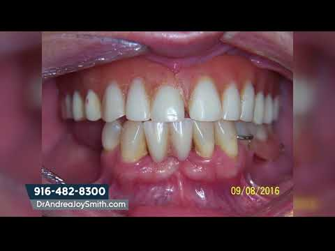How Much Are Mini Dental Implants?