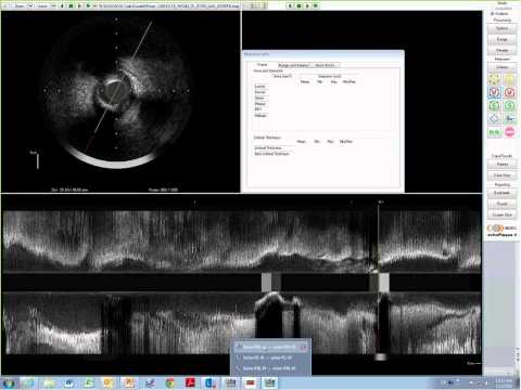 Prospect II Core Lab Feedback - Lund