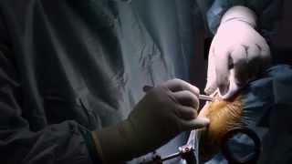 IL-DOC: Sähköä aivoihin