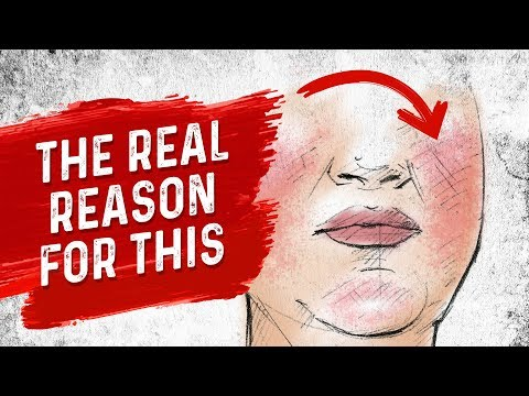 the-real-reason-for-rosacea