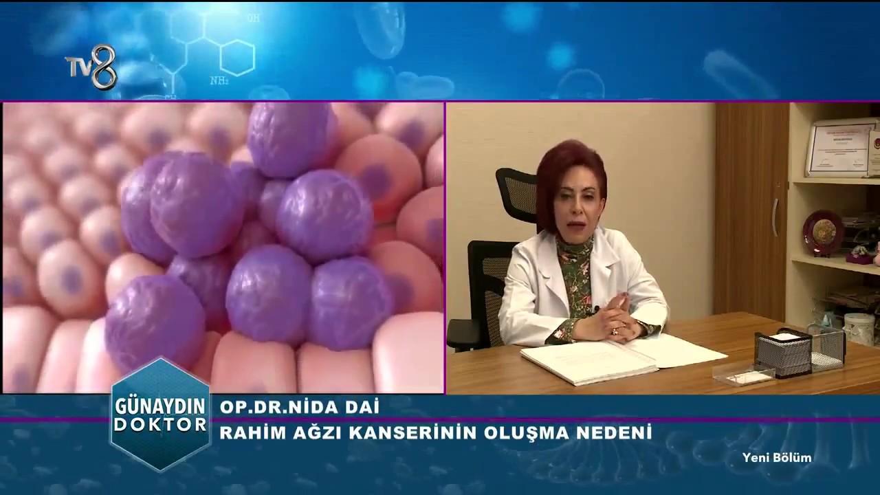 Rahim ağzı kanseri: semptomlar, nedenleri, tedavisi