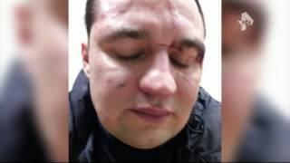 Тусовщика жестоко избили в ночном клубе в Подмосковье(Официальный сайт: http://ren.tv/ Сообщество в Facebook: https://www.facebook.com/rentvchannel Сообщество в VK: https://vk.com/rentvchannel ..., 2016-03-21T14:04:46.000Z)