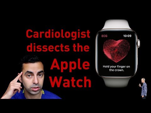 Cardiologist's scientific analysis of the Apple Watch