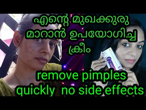 Remove Pimples And Acne In One Week  ||easy And Simple Method