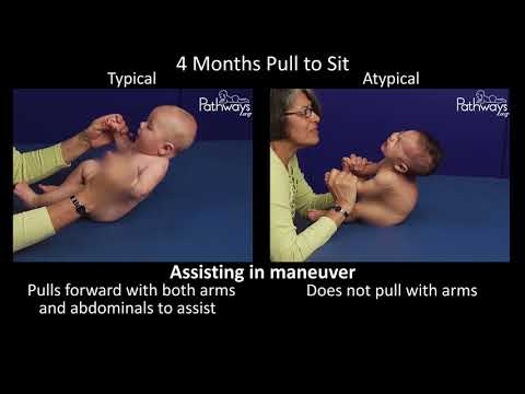 4 Month Old Baby Typical & Atypical Development Side by Side