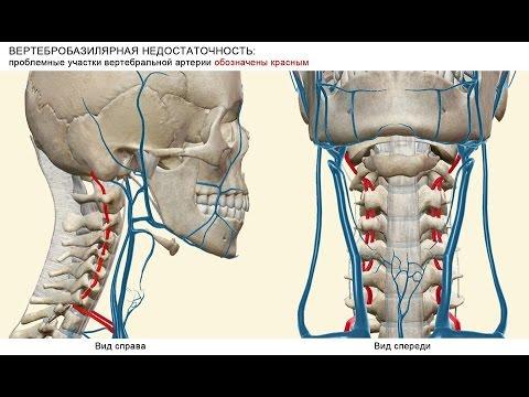 синдром цвд на фоне остеохондроза