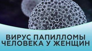 ВПЧ у женщин. Вирус папилломы человека