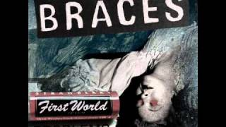 Watch Braces Mouthbreather video