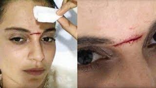 Kangana Ranaut Injured during a sword fight scene